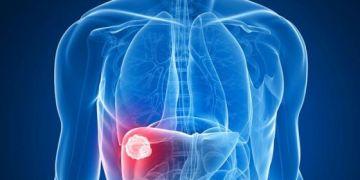 5 nguyên nhân gây ung thư gan bạn cần biết
